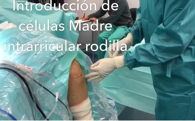 Tratamiento de células madre para artrosis de rodilla