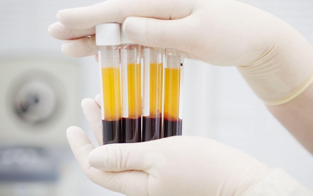 Medicina regenerativa: tendón de Aquiles